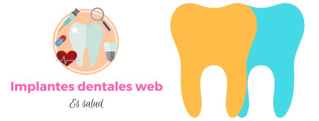 Implantes dentales web (3)